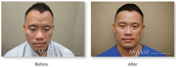 美國知名植髮大師 Dr. John Cole蒞臨MyHair生髮植鬍 13