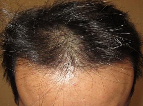 周先生-美式數位植髮Dr. John Cole 打造髮際線 2