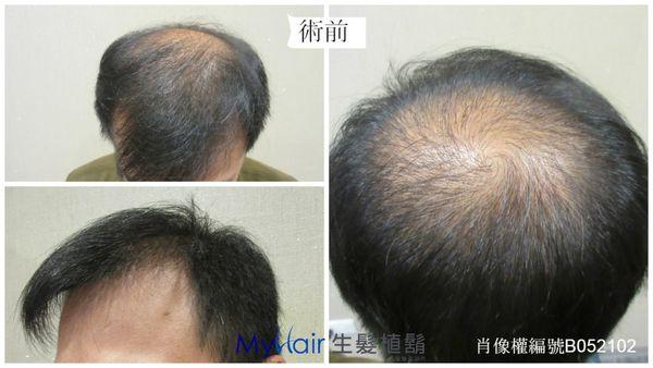 小林-擺脫遺傳性禿頭夢魘 3
