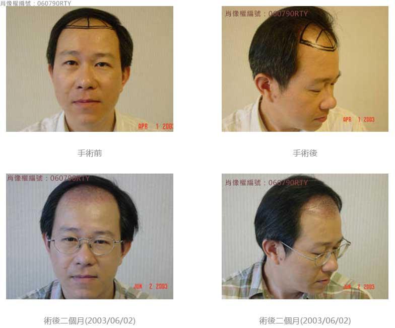 廖先生-我的植髮日記-美式數位植髮Dr. John Cole 2