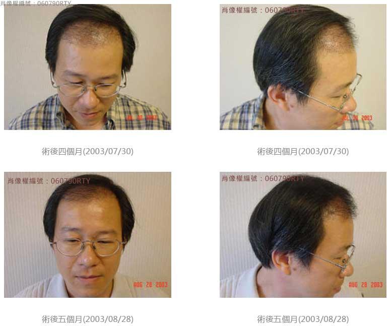 廖先生-我的植髮日記-美式數位植髮Dr. John Cole 3