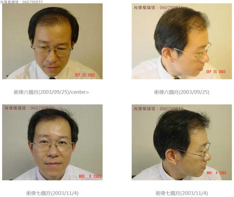 廖先生-我的植髮日記-美式數位植髮Dr. John Cole 4