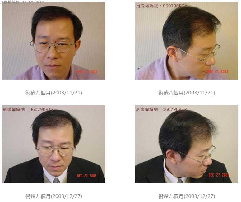 廖先生-我的植髮日記-美式數位植髮Dr. John Cole 5