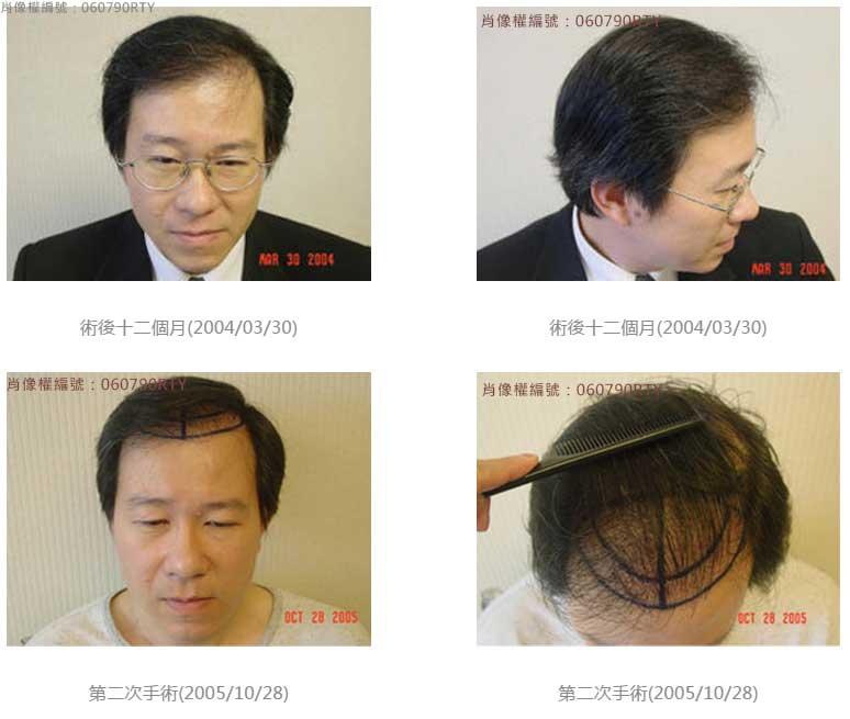 廖先生-我的植髮日記-美式數位植髮Dr. John Cole 7