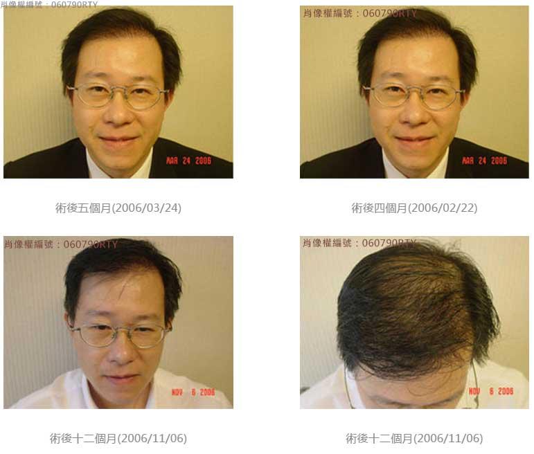 廖先生-我的植髮日記-美式數位植髮Dr. John Cole 8