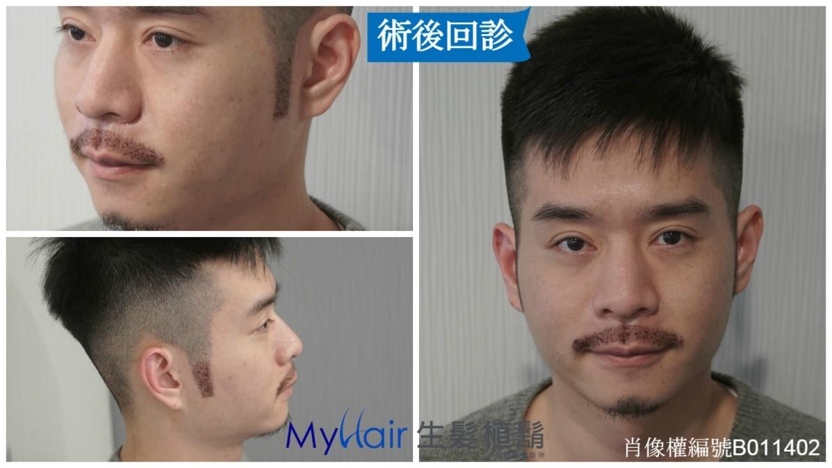 Martin-型男醫師植鬍日記 7