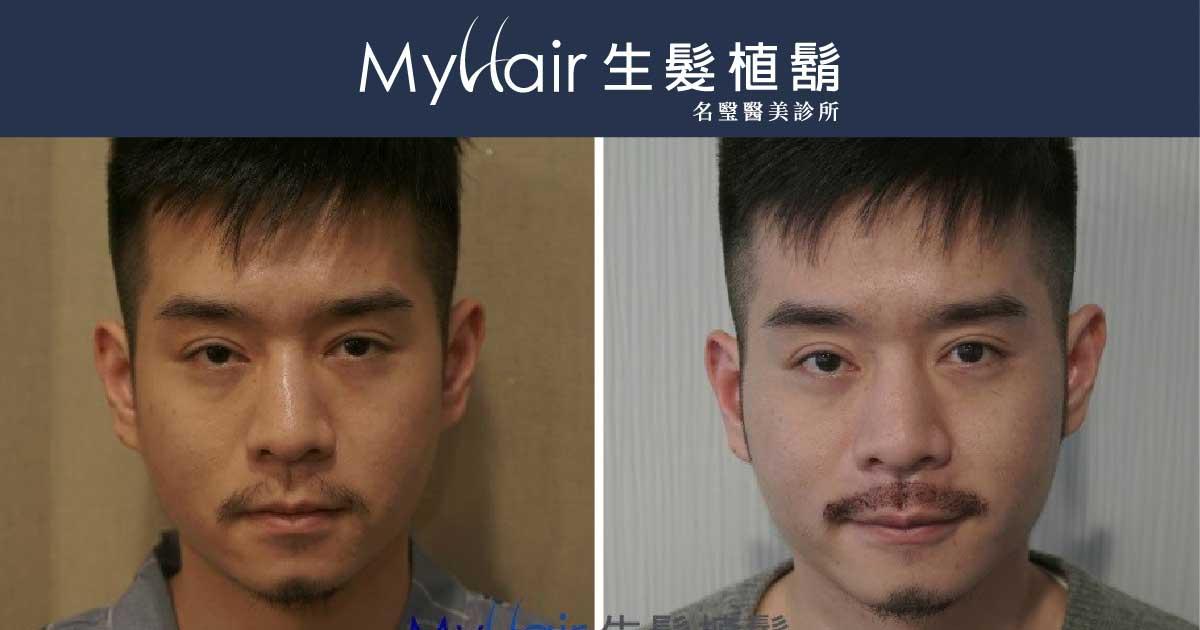 Martin-型男醫師植鬍日記 1