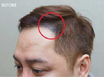 【藝人瘋植髮】為「髮」濕的淚:歌手永邦來報到! 13
