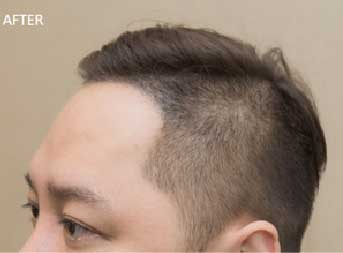 【藝人瘋植髮】為「髮」濕的淚:歌手永邦來報到! 14