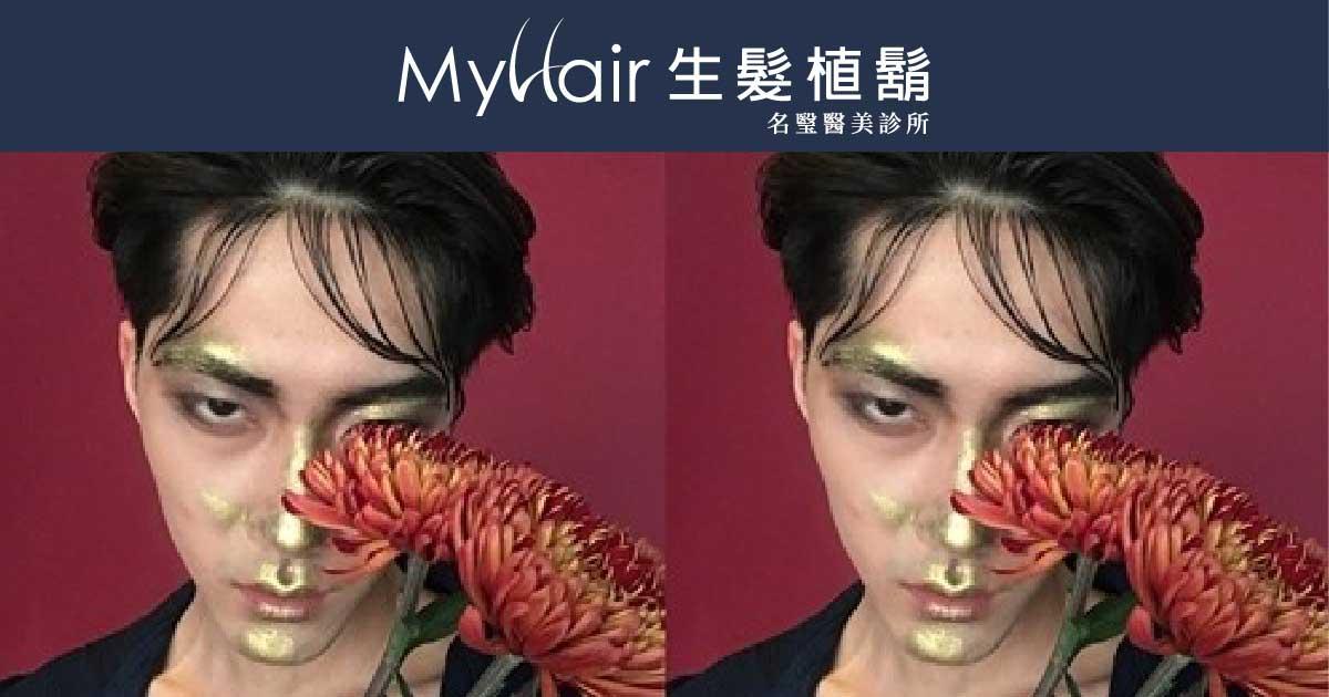【光氧護能量豐髮】模特兒MIKA現身說法 1