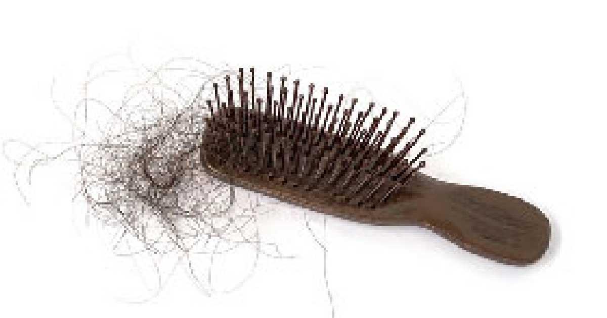 換季狂掉髮怕禿?留意「4大現象」頭皮屑增加要當心了 4