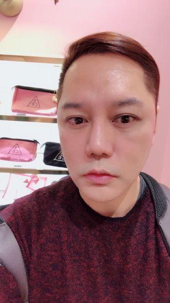 【藝人瘋植髮】為「髮」濕的淚:歌手永邦來報到! 16