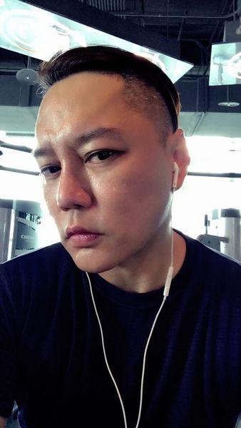 【藝人瘋植髮】為「髮」濕的淚:歌手永邦來報到! 15