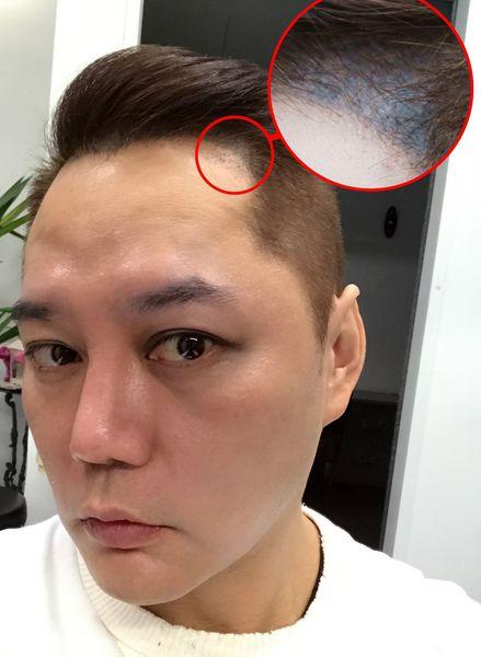 【藝人瘋植髮】為「髮」濕的淚:歌手永邦來報到! 5