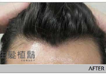 阿強-寇約翰植髮打造迷人武士風 4