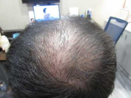 MyHair CARE Your Hair 植髮,髮量增加感覺就對了! 5