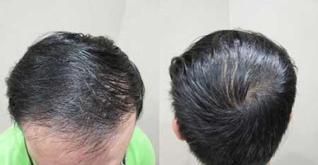 MyHair CARE Your Hair 植髮,髮量增加感覺就對了! 6