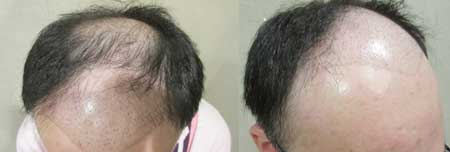 MyHair CARE Your Hair 植髮,髮量增加感覺就對了! 2