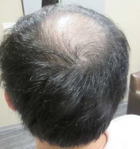 MyHair CARE Your Hair 植髮,髮量增加感覺就對了! 3