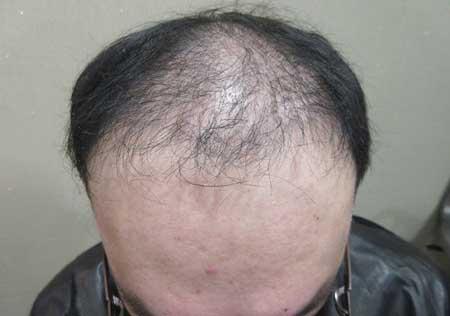 MyHair CARE Your Hair 植髮,髮量增加感覺就對了! 4
