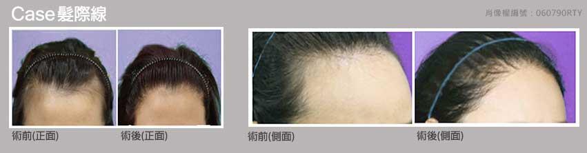 女性髮際線 3