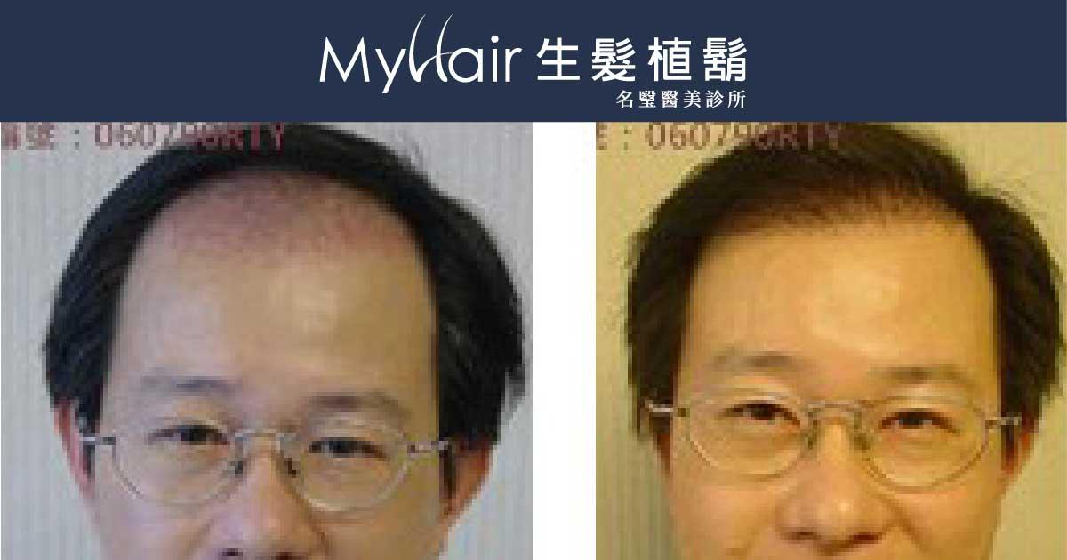 廖先生-我的植髮日記-美式數位植髮Dr. John Cole 1