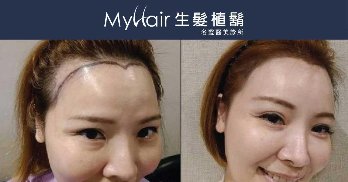 【植髮際線】圓形髮際線 輕鬆駕馭All-Back髮型! 1