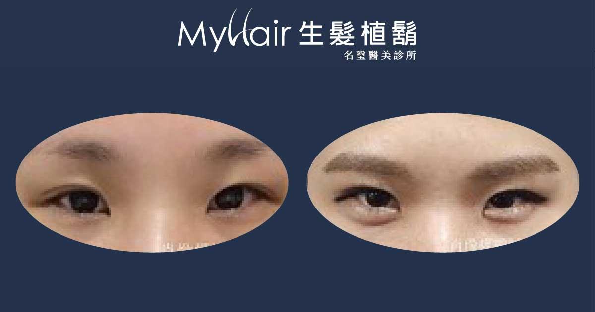 【植眉】- 免化妝擁有嬌俏娥眉,每天多睡20分! 1