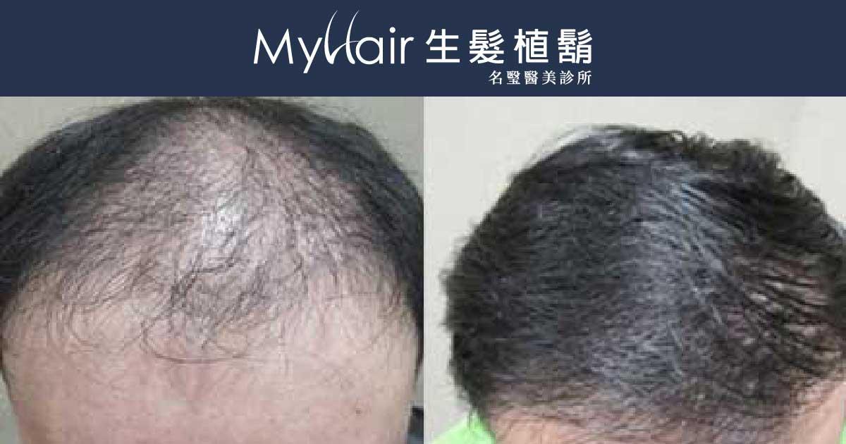MyHair CARE Your Hair 植髮,髮量增加感覺就對了! 1