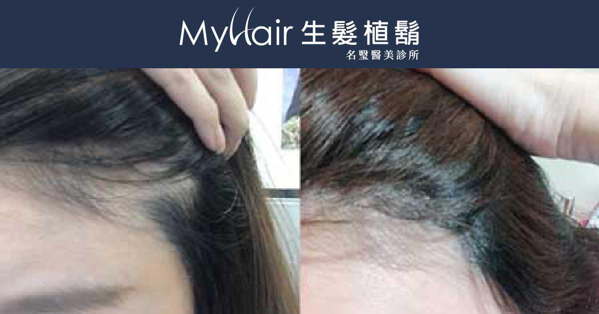 MyHair CARE Your Hair 植髮際線,美得更加分! 1