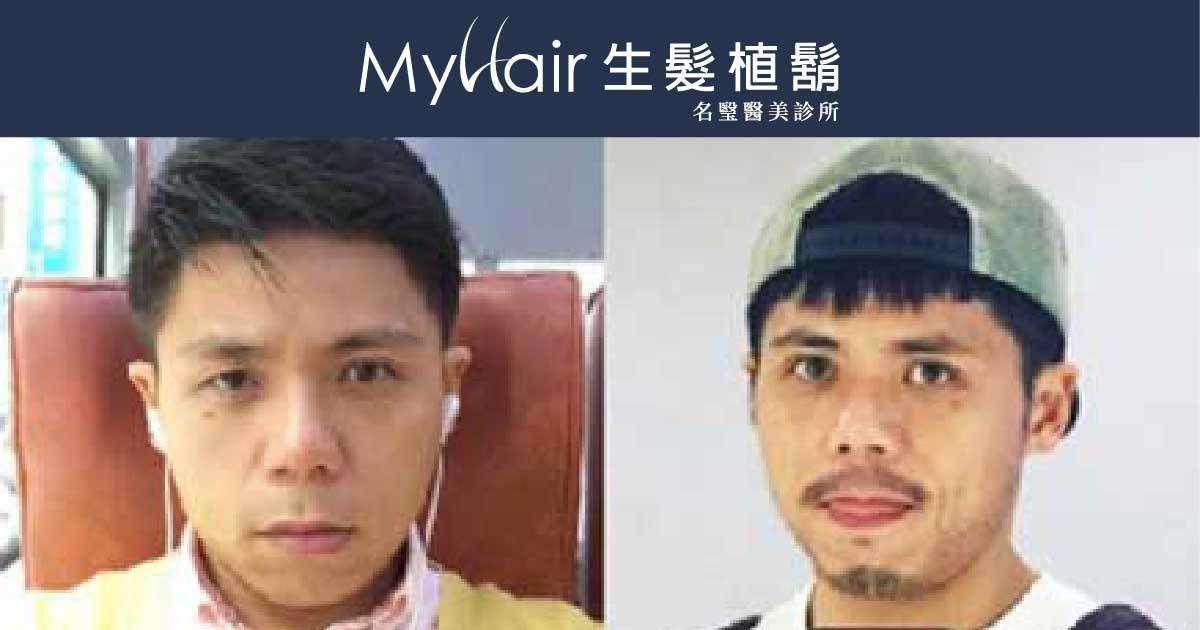 MyHair Care Your Hair 植鬍,讓我帥度滿分! 1
