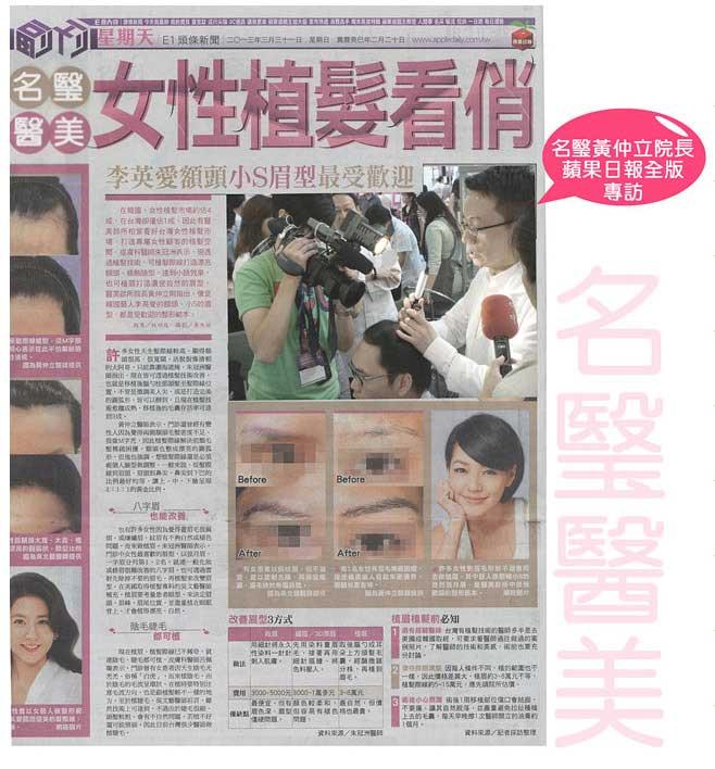 女性植眉 1