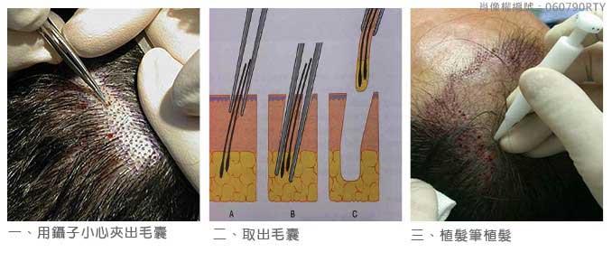 微創植髮 (FUE) 3
