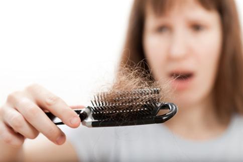 【落髮7迷思】頭毛直直落!我做錯什麼了? 1