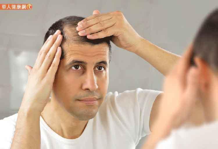經常感冒、免疫力差?易使毛囊萎縮雄性禿雪上加霜 1
