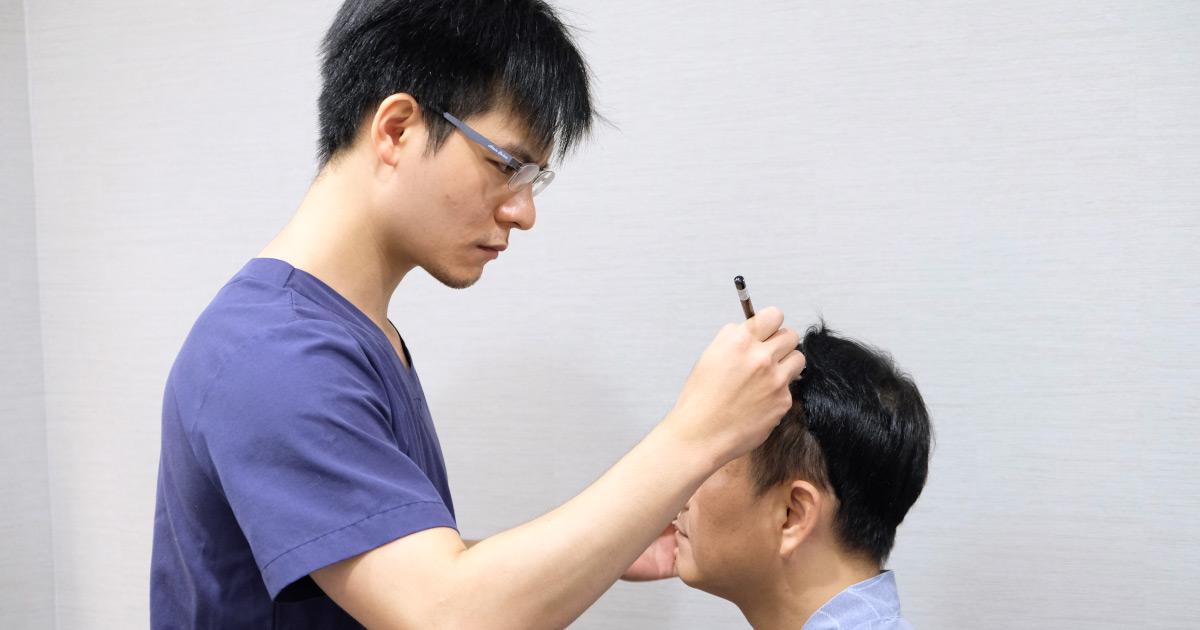 醫師點名消費陷阱 小心生髮不成恐變禿 7