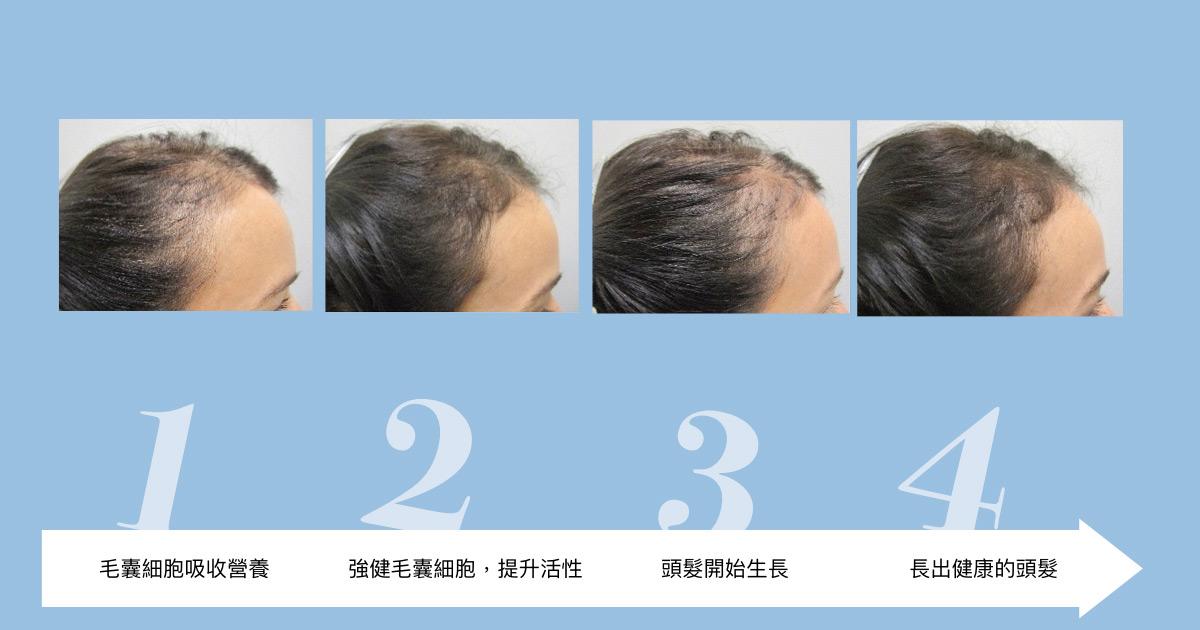 歐美紅回台灣的《Viviscal PRO》是甚麼?MyHair生髮植鬍醫師推薦 3