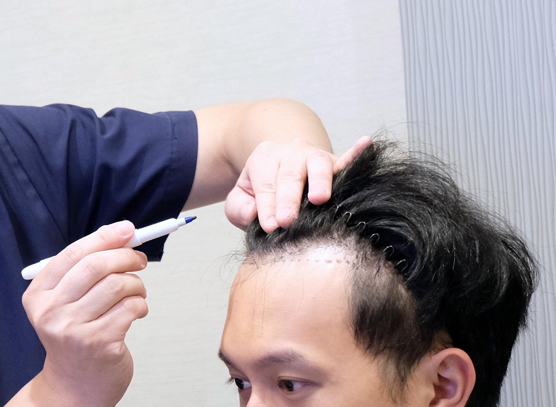 ARTAS 植髮機器人