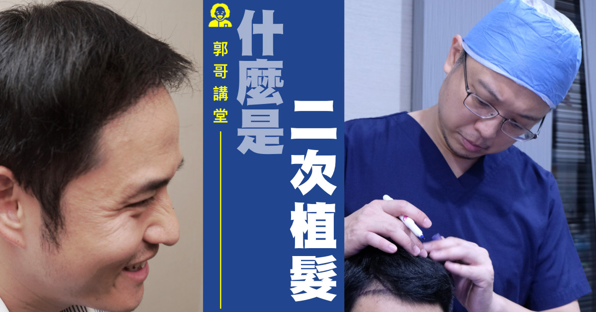 【郭哥講堂】植髮有可能要植兩次嗎? 2
