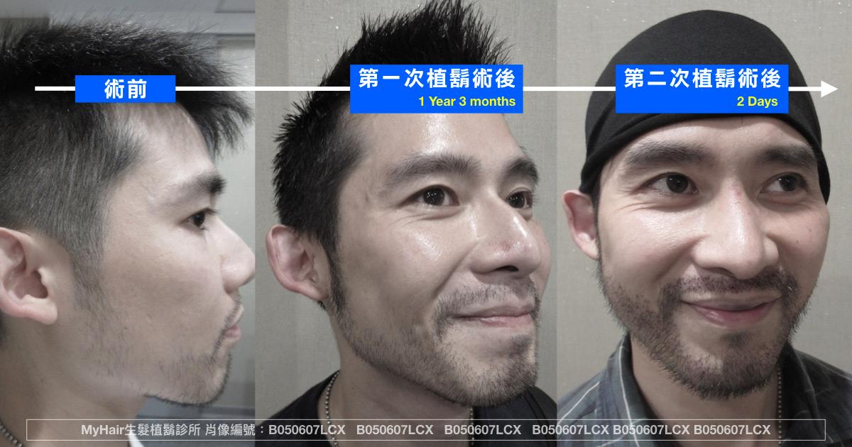 【郭哥講堂】植髮有可能要植兩次嗎? 3